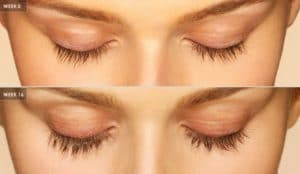 long eyelashes at Bella Lei with Latisse